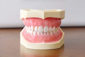 歯型の画像です